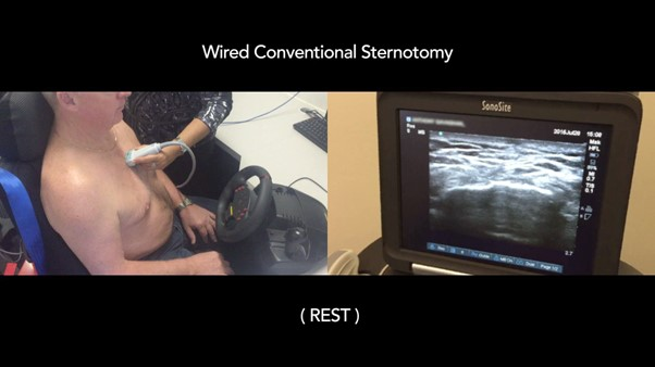Wired conventional sternotomy