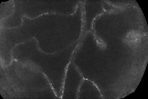 Microaneurysm